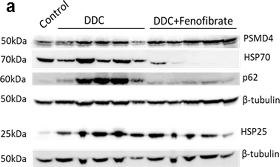 The PPARα Agonist Fenofibrate Prevents Formation of Protein Aggregates (Mallory-Denk bodies) in a Murine Model of Steatohepatitis-like Hepatotoxicity.