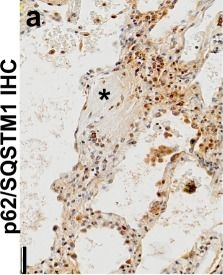 Autophagy inhibition-mediated epithelial-mesenchymal transition augments local myofibroblast differentiation in pulmonary fibrosis.
