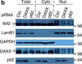 Cytoplasmic DAXX drives SQSTM1/p62 phase condensation to activate Nrf2-mediated stress response.