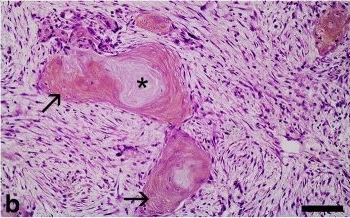 Immunohistochemical staining patterns of alpha-keratins in normal tissues from two reptile species: implications for characterization of squamous cell carcinomas.