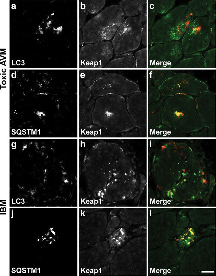 Activation of the Keap1/Nrf2 stress response pathway in autophagic vacuolar myopathies.