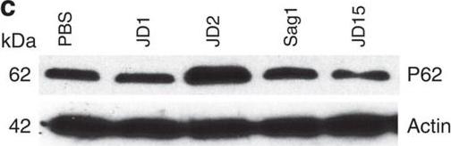 Autophagy and endosomal trafficking inhibition by Vibrio cholerae MARTX toxin phosphatidylinositol-3-phosphate-specific phospholipase A1 activity.