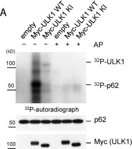Proteotoxic stress induces phosphorylation of p62/SQSTM1 by ULK1 to regulate selective autophagic clearance of protein aggregates.