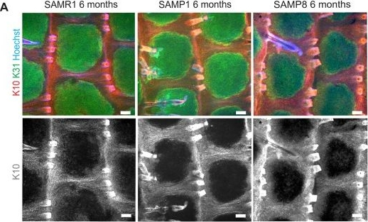 Wild-type and SAMP8 mice show age-dependent changes in distinct stem cell compartments of the interfollicular epidermis.