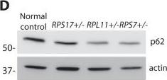 Ribosomal protein mutations induce autophagy through S6 kinase inhibition of the insulin pathway.