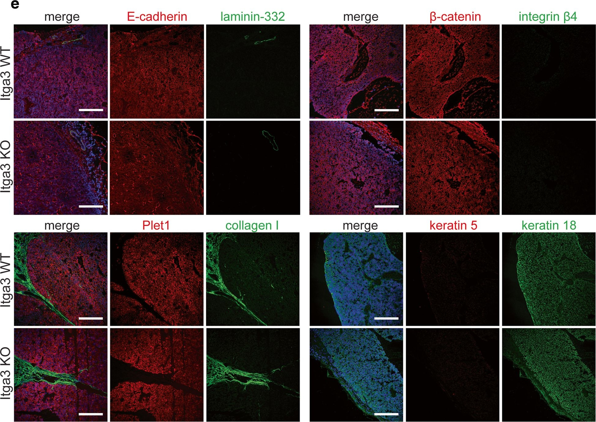 Absence of integrin α3β1 promotesthe progression of HER2-driven breast cancer in vivo.