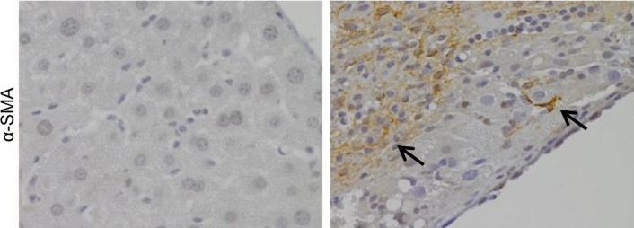 Local but not systemic administration of mesenchymal stromal cells ameliorates fibrogenesis in regenerating livers.