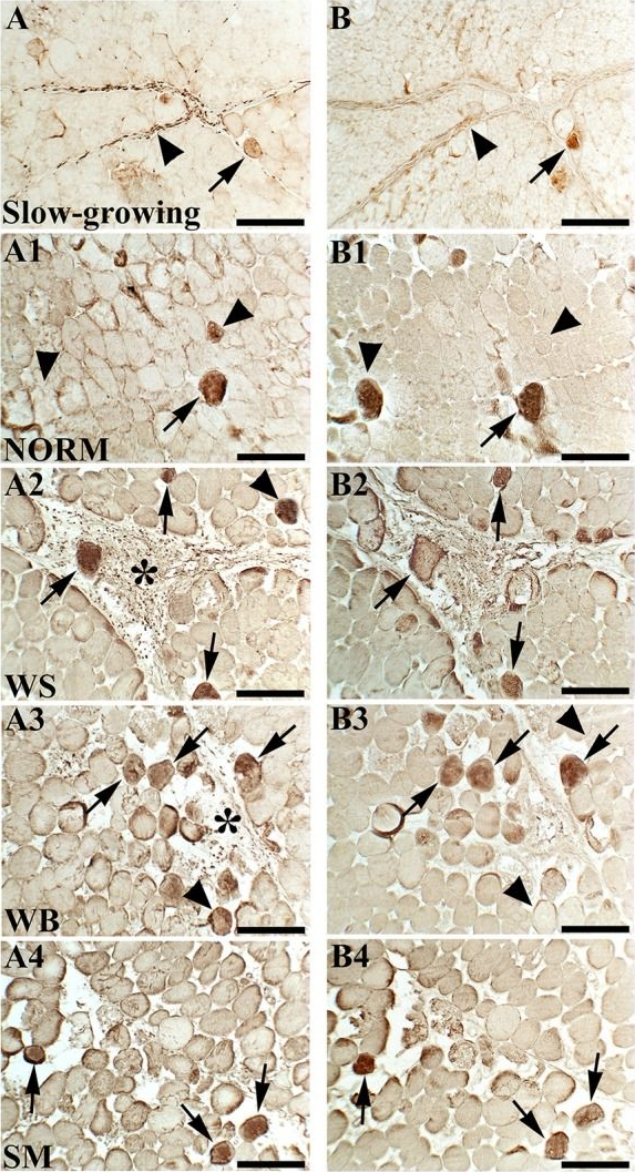 Distribution and Expression of Vimentin and Desmin in Broiler Pectoralis major Affected by the Growth-Related Muscular Abnormalities.