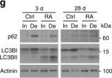 mTORC1 and PKB/Akt control the muscle response to denervation by regulating autophagy and HDAC4.