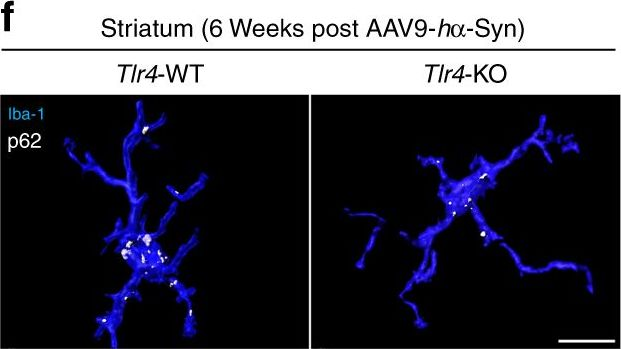 Microglia clear neuron-released α-synuclein via selective autophagy and prevent neurodegeneration.