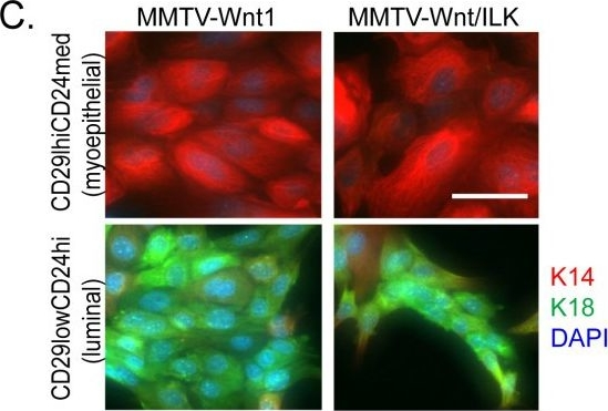 Cooperative signaling between Wnt1 and integrin-linked kinase induces accelerated breast tumor development.