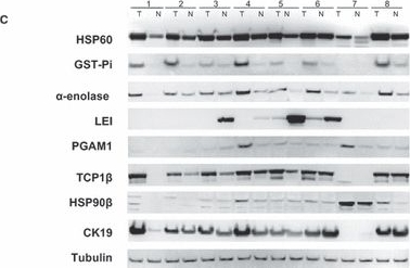 Identification and verification of heat shock protein 60 as a potential serum marker for colorectal cancer.