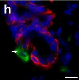 Macrophages orchestrate breast cancer early dissemination and metastasis.