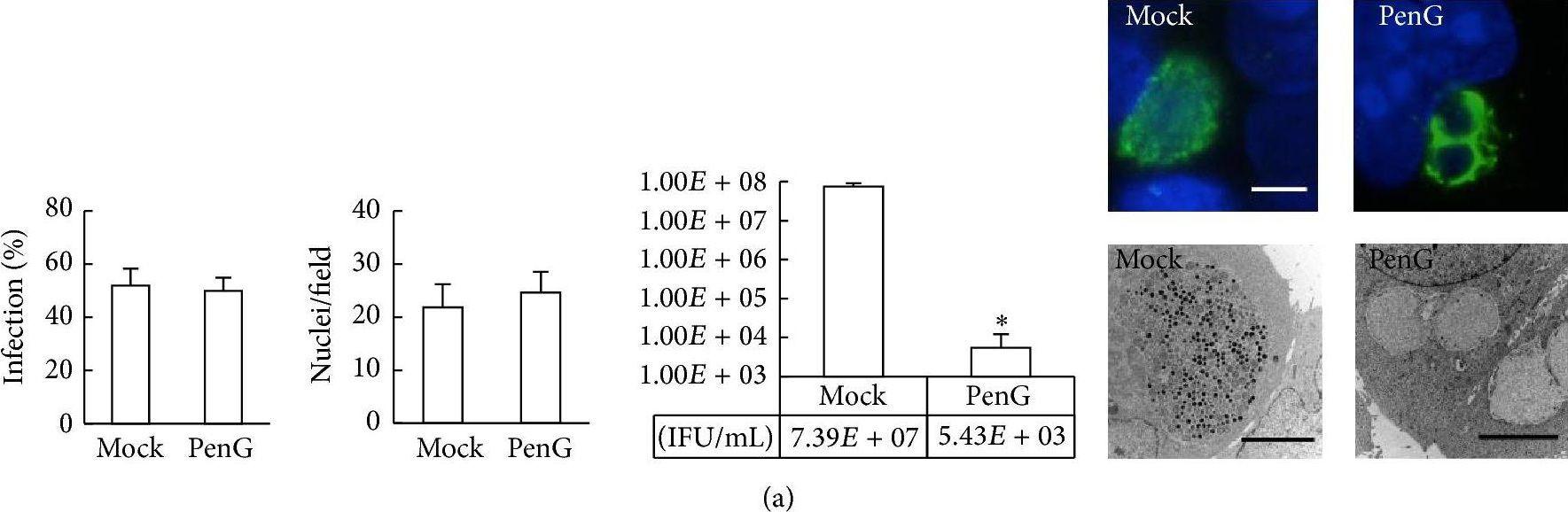 Penicillin G-Induced Chlamydial Stress Response in a Porcine Strain of Chlamydia pecorum.