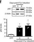 Brain tyrosinase overexpression implicates age-dependent neuromelanin production in Parkinson's disease pathogenesis.