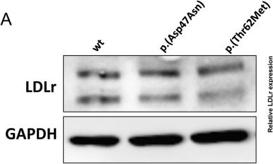 p.(Asp47Asn) and p.(Thr62Met): non deleterious LDL receptor missense variants functionally characterized in vitro.