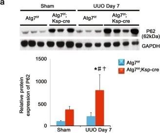 Autophagy attenuates tubulointerstital fibrosis through regulating transforming growth factor-β and NLRP3 inflammasome signaling pathway.