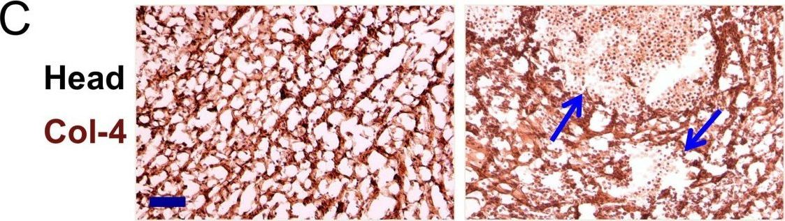 Involvement of the Reck tumor suppressor protein in maternal and embryonic vascular remodeling in mice.