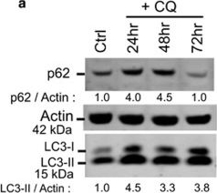Lysosomotropism depends on glucose: a chloroquine resistance mechanism.