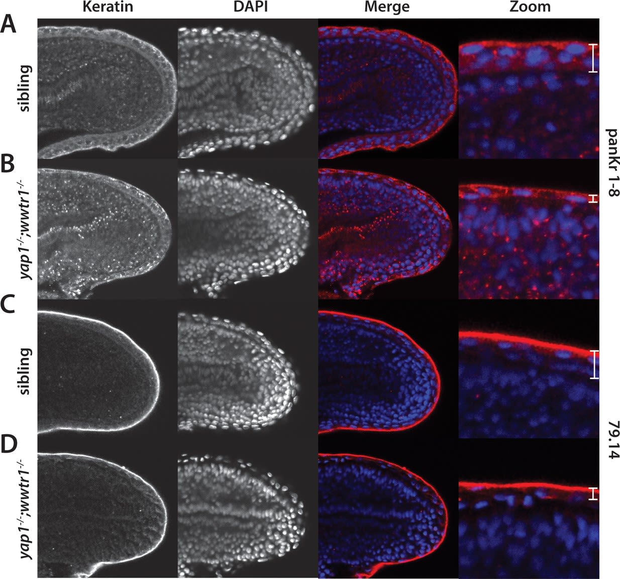 Regulation of posterior body and epidermal morphogenesis in zebrafish by localized Yap1 and Wwtr1.