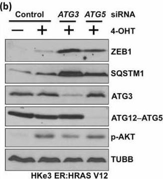 Autophagy inhibition specifically promotes epithelial-mesenchymal transition and invasion in RAS-mutated cancer cells.