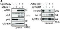 Loss of autophagy impairs physiological steatosis by accumulation of NCoR1.
