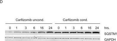 Hydroxychloroquine potentiates carfilzomib toxicity towards myeloma cells.