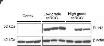 The glucose and lipid metabolism reprogramming is grade-dependent in clear cell renal cell carcinoma primary cultures and is targetable to modulate cell viability and proliferation.