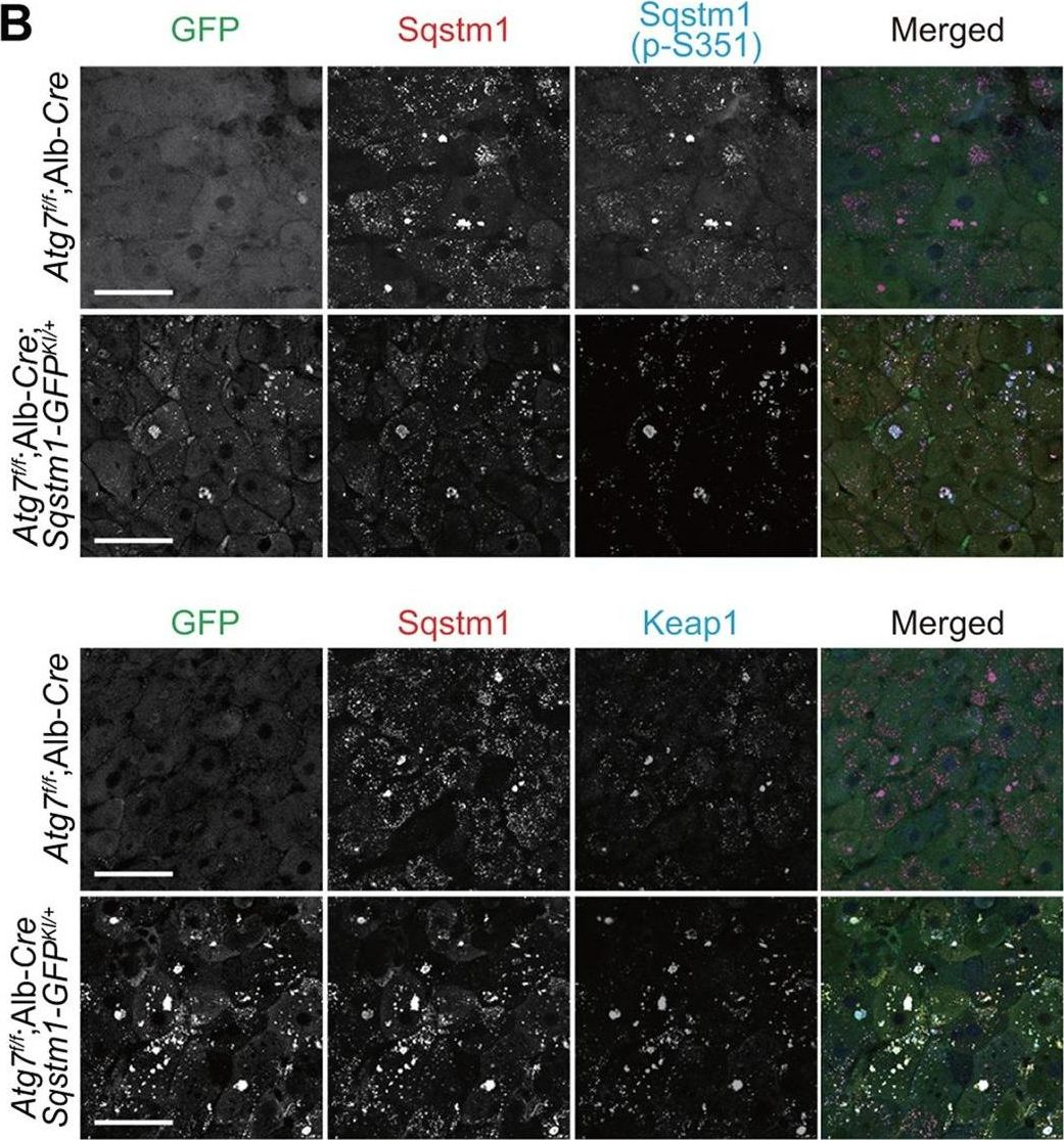 Sqstm1-GFP knock-in mice reveal dynamic actions of Sqstm1 during autophagy and under stress conditions in living cells.