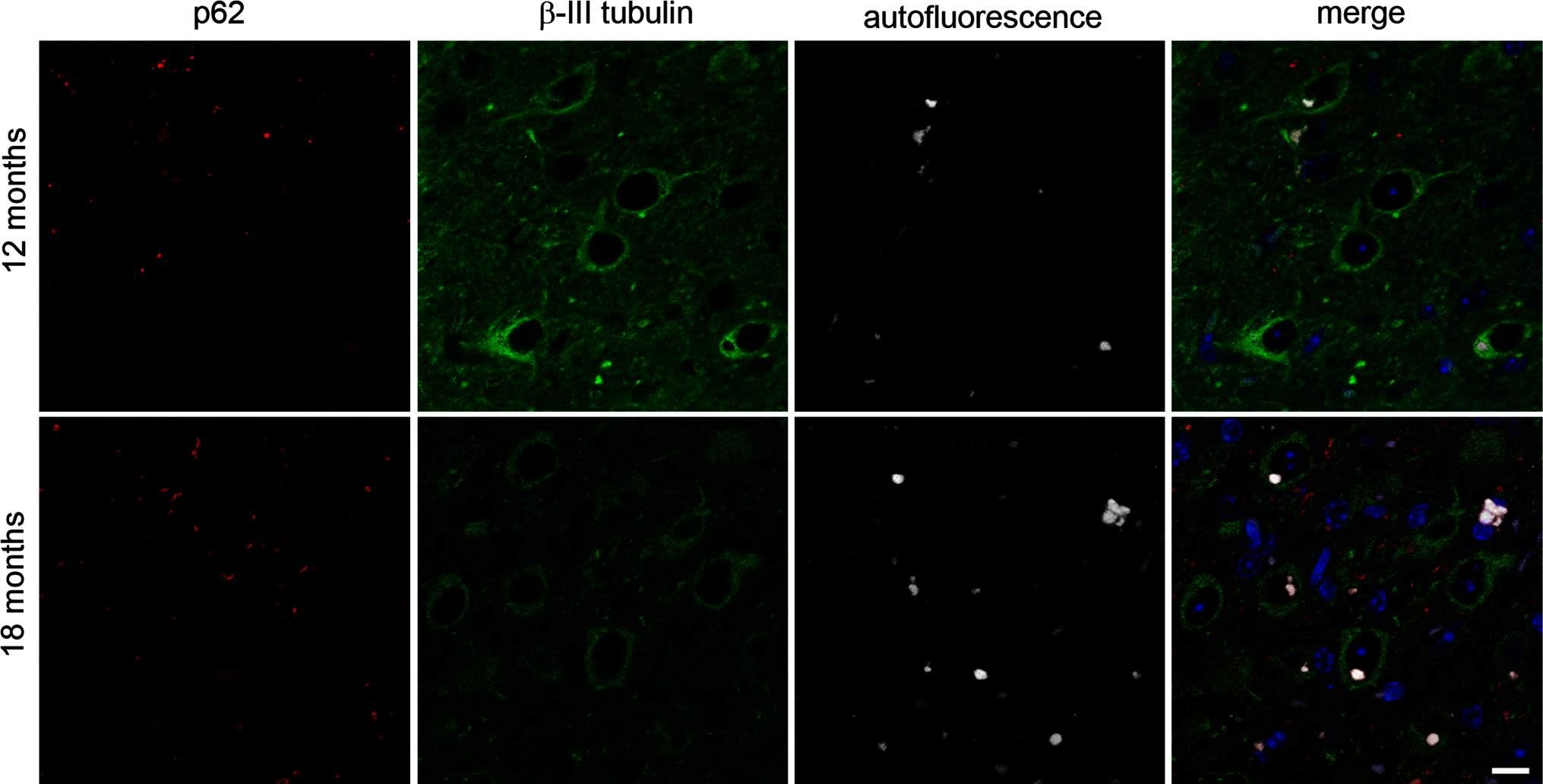 Frontotemporal dementia caused by CHMP2B mutation is characterised by neuronal lysosomal storage pathology.