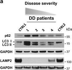 Autophagy dysregulation in Danon disease.