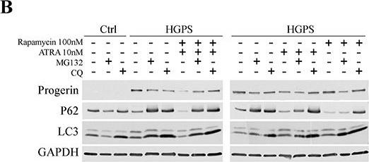 All-trans retinoic acid and rapamycin normalize Hutchinson Gilford progeria fibroblast phenotype.