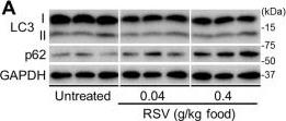 Resveratrol Ameliorates Mitophagy Disturbance and Improves Cardiac Pathophysiology of Dystrophin-deficient mdx Mice.