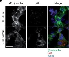 Lysosomal degradation of newly formed insulin granules contributes to β cell failure in diabetes.