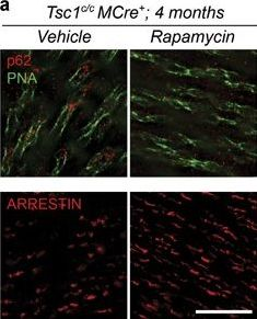 TSC but not PTEN loss in starving cones of retinitis pigmentosa mice leads to an autophagy defect and mTORC1 dissociation from the lysosome.