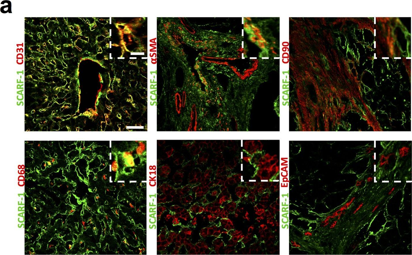 SCARF-1 promotes adhesion of CD4+ T cells to human hepatic sinusoidal endothelium under conditions of shear stress.