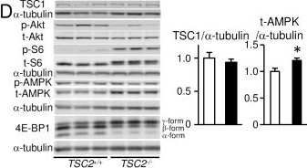 mTOR Hyperactivation by Ablation of Tuberous Sclerosis Complex 2 in the Mouse Heart Induces Cardiac Dysfunction with the Increased Number of Small Mitochondria Mediated through the Down-Regulation of Autophagy.