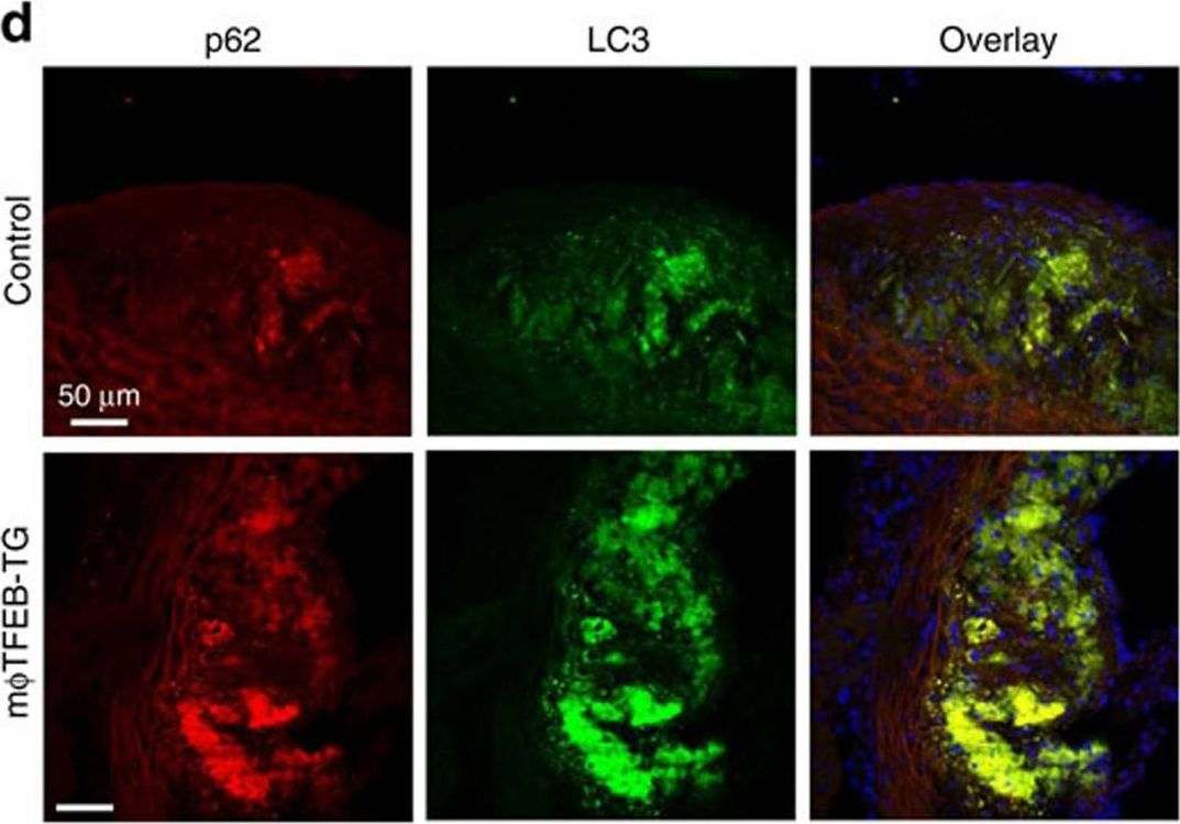 Exploiting macrophage autophagy-lysosomal biogenesis as a therapy for atherosclerosis.