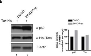 SQSTM-1/p62 potentiates HTLV-1 Tax-mediated NF-κB activation through its ubiquitin binding function.