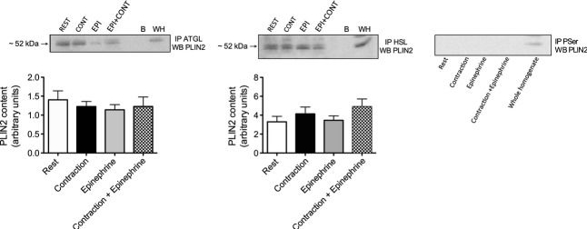 Skeletal muscle PLIN3 and PLIN5 are serine phosphorylated at rest and following lipolysis during adrenergic or contractile stimulation.