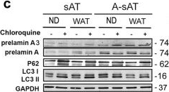 Altered adipocyte differentiation and unbalanced autophagy in type 2 Familial Partial Lipodystrophy: an in vitro and in vivo study of adipose tissue browning.