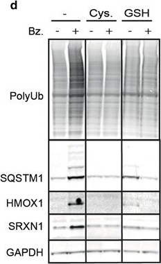 Intracellular glutathione determines bortezomib cytotoxicity in multiple myeloma cells.