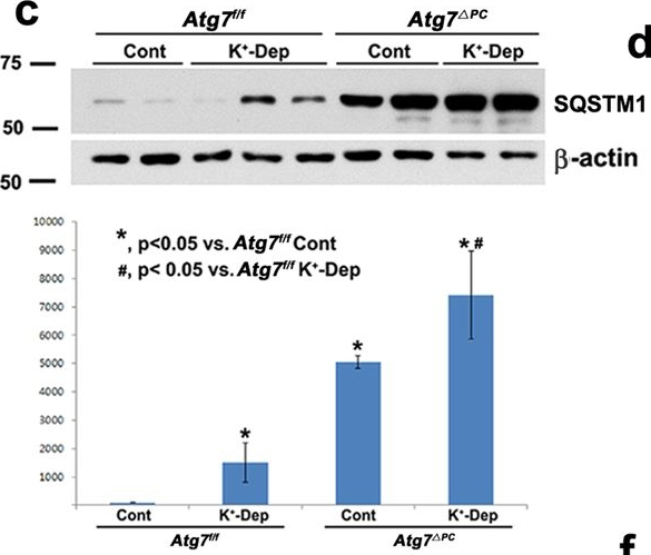 Atg7-dependent canonical autophagy regulates the degradation of aquaporin 2 in prolonged hypokalemia.
