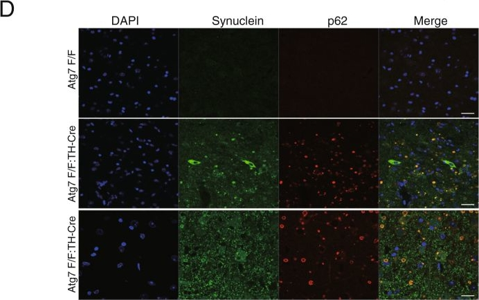 Loss of autophagy in dopaminergic neurons causes Lewy pathology and motor dysfunction in aged mice.