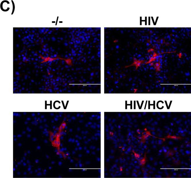 Fibrogenic Gene Expression in Hepatic Stellate Cells Induced by HCV and HIV Replication in a Three Cell Co-Culture Model System.