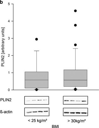 Maternal obesity modulates intracellular lipid turnover in the human term placenta.