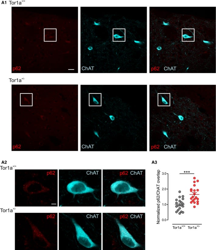 RGS9-2 rescues dopamine D2 receptor levels and signaling in DYT1 dystonia mouse models.