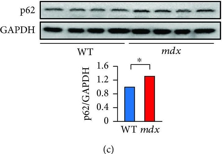 Resveratrol Decreases Oxidative Stress by Restoring Mitophagy and Improves the Pathophysiology of Dystrophin-Deficient mdx Mice.