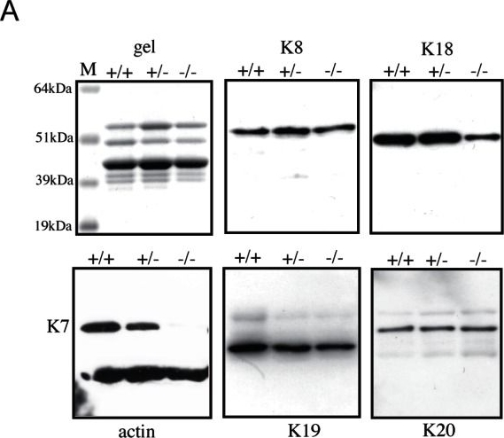 Generation and characterisation of keratin 7 (K7) knockout mice.