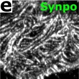 Volumetric, Nanoscale Optical Imaging of Mouse and Human Kidney via Expansion Microscopy.
